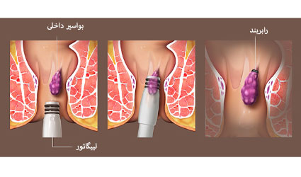 درمان بواسیر با رابر بند