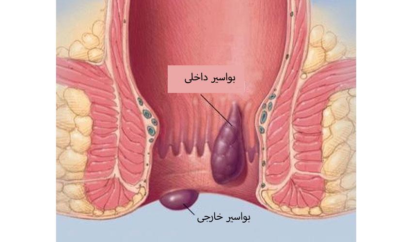 بواسیر(هموروئید) چیست؟، علت، علائم و انواع هموروئید