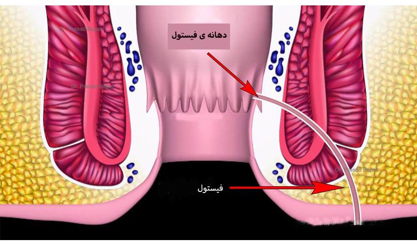 فیستول مقعدی آنال- علائم – انواع و تشخیص