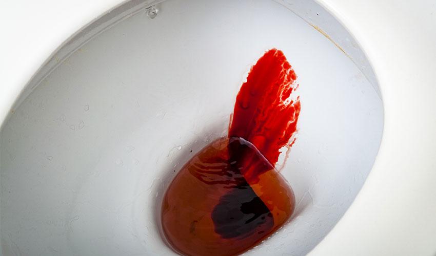 خونریزی مقعدی(رکتوم)، درمان، علائم، علت ها و پیشگیری