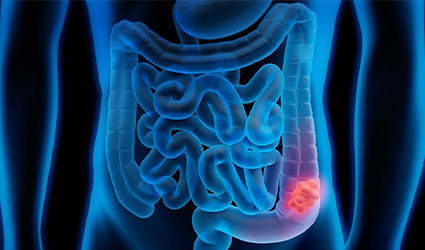 Comparison of rectal cancer with hemorrhoids