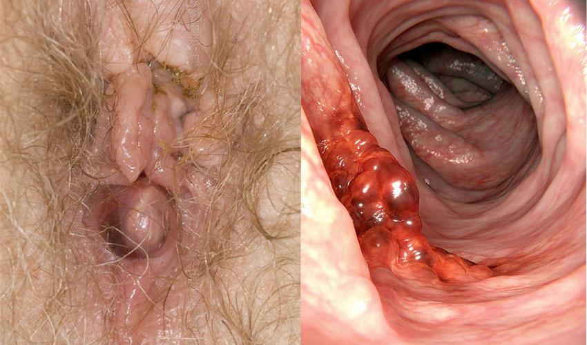 مقایسه ی سرطان رکتوم با بواسیر ، علائم، عوامل و درمان