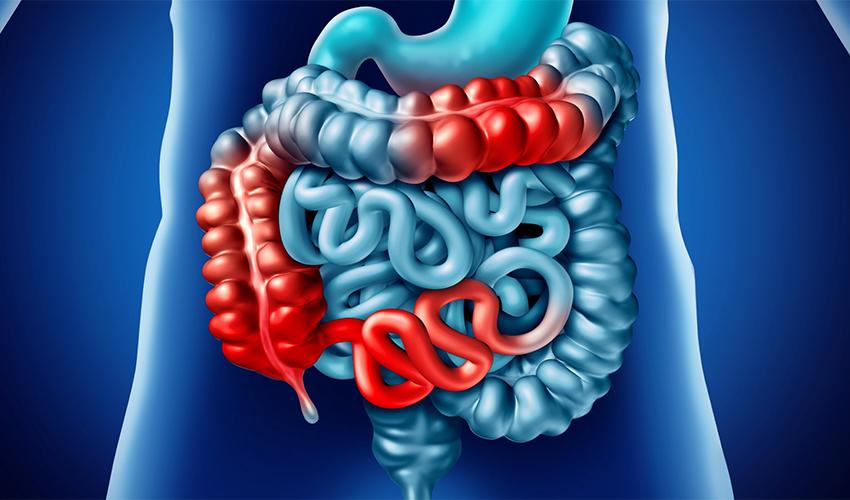 بیماری کرون ؛ دلایل، علائم، روشهای درمان و تشخیص